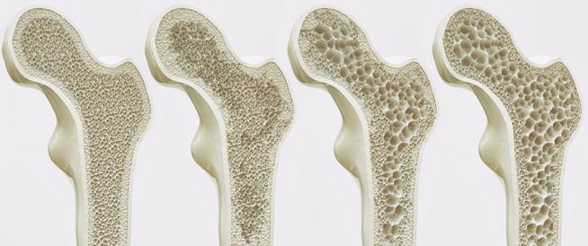 تأثير برنامج مقترح للتمرينات الهوائية في الوسط المائي وبعض المكملات الغذائية على كثافة العظام